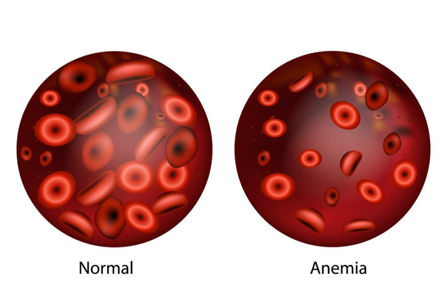 anemia Pipli For Weight Loss