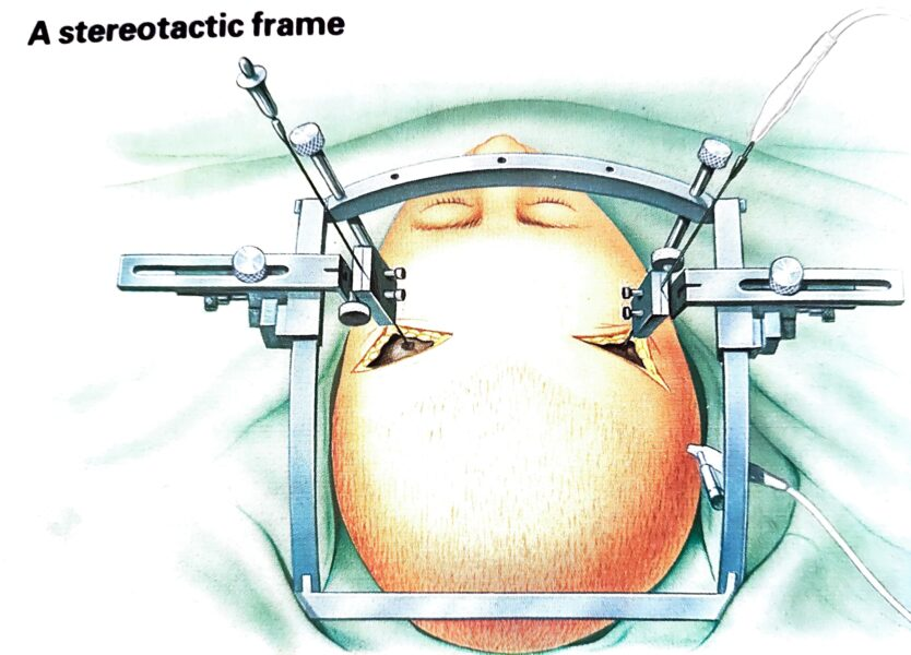 leucotomy frame