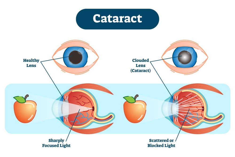 cataract care of eyes