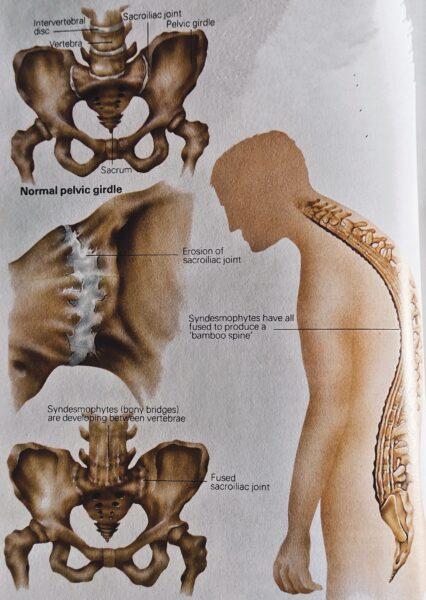 cause of ankylosing Spondylitis