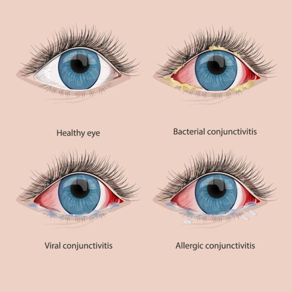 conjunctivitis care of eyes