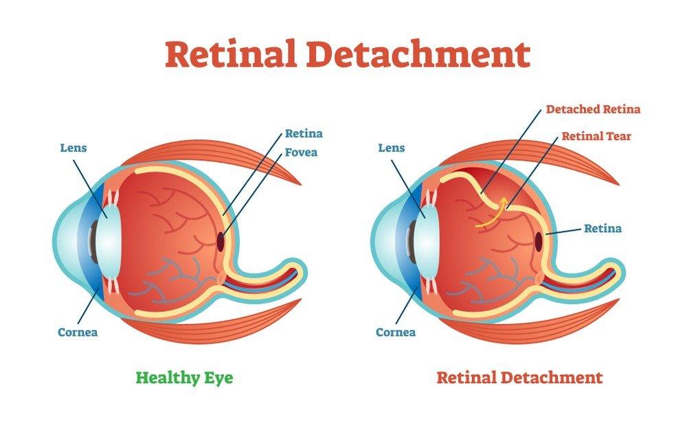 detachment of retina