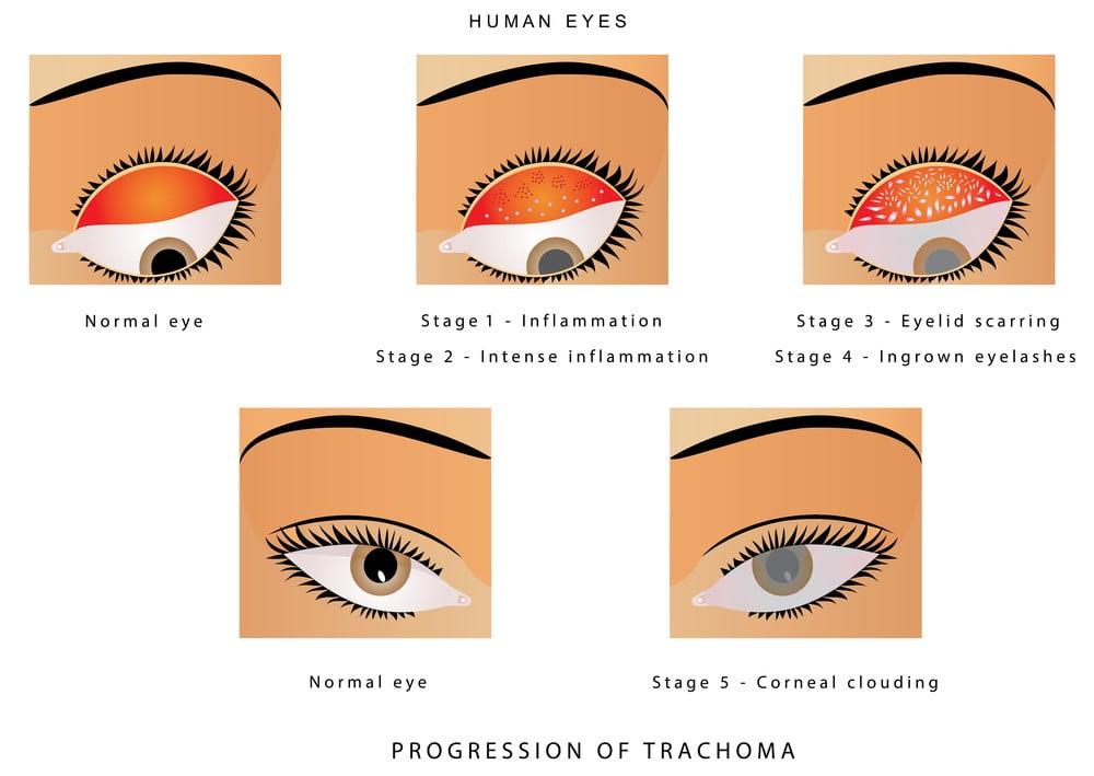 trachoma care of eyes