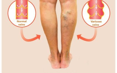varicose veins ocd 10