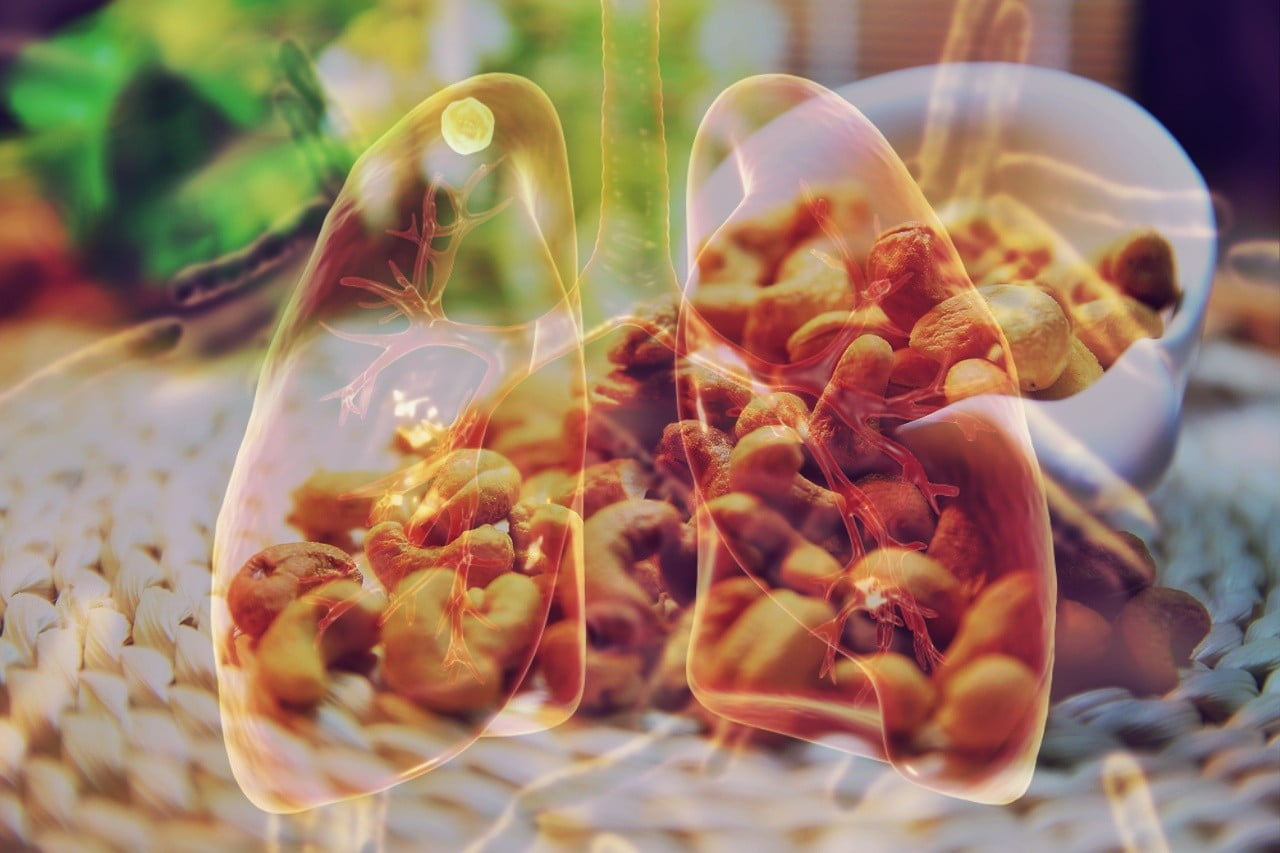Benefits of Cashew In Tuberculosis