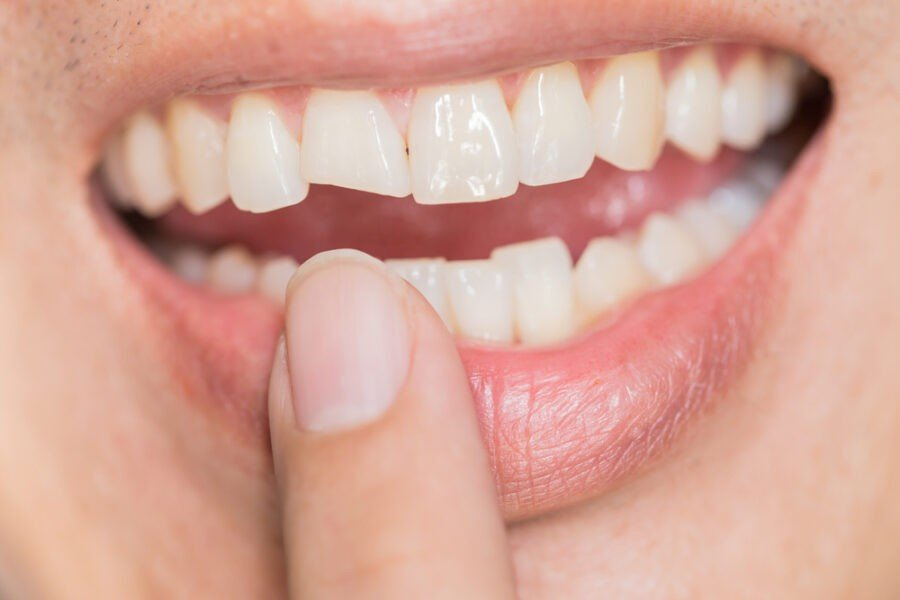 Trauma Teeth take care of your teeth without dentist
