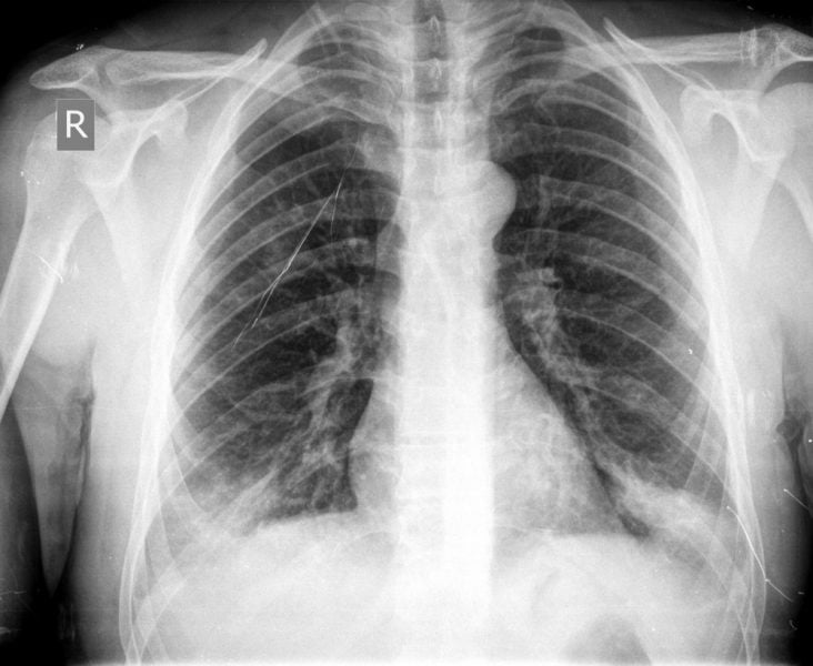 chest x-ray Benefits of Cashew In Tuberculosis