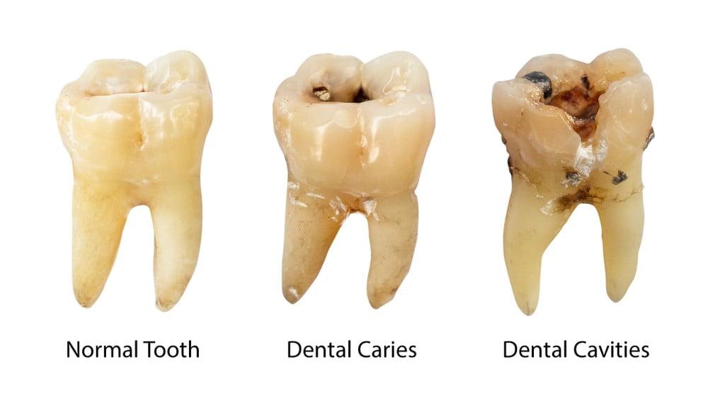 dental Carries