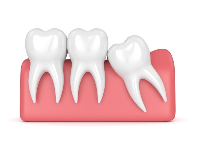wisdom teeth take care of your teeth without dentist